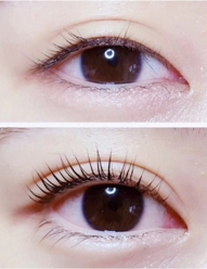 素颜角蛋白翘睫术
